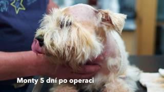 Operace mozku | Hydrocefalus