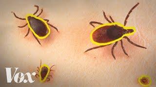 Nature fanaTICKS beware; cases of Lyme disease are on the rise. Subscribe to our channel! http://goo.gl/0bsAjO Lyme disease is the most common vector-borne d...