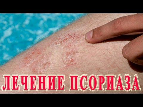 ★Как вылечить псориаз. Причины, симптомы и лечение псориаза в домашних условиях.