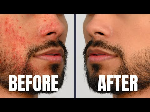 7 Skin Care Tricks Attractive/Handsome Guys Do DAILY