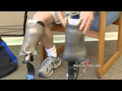 Floyd Brace  COMMERCIAL  Testimonial30 1 Hear from Floyd Brace Company patients about how our certified practitioners have helped fit them with the perfect prosthetic and allow them to get back to doing the activities they love.