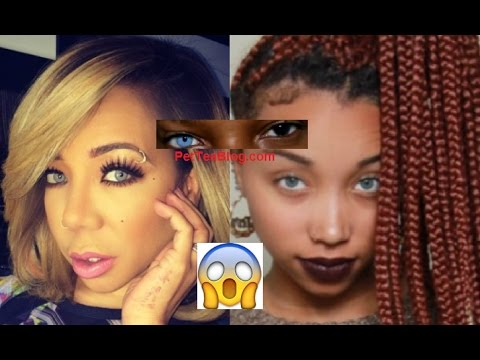 Tiny Harris afraid of going BLIND from Eye Col