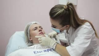 Увеличение губ при помощи гиалуроновой кислоты