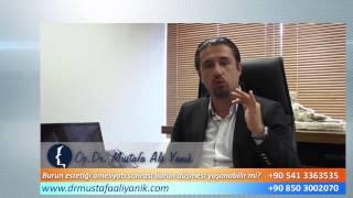 Op. Dr. Mustafa Ali Yanık burun düşmesi burun estetiği sonrası olabilir mi?