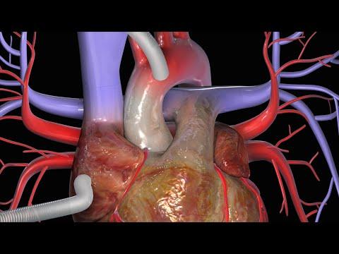 Hoe wordt een coronaire-bypass-operatie (CABG) uitgevoerd?