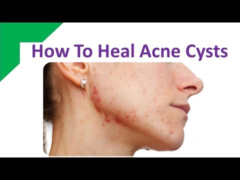 How To Heal Acne Cysts With Aspirin