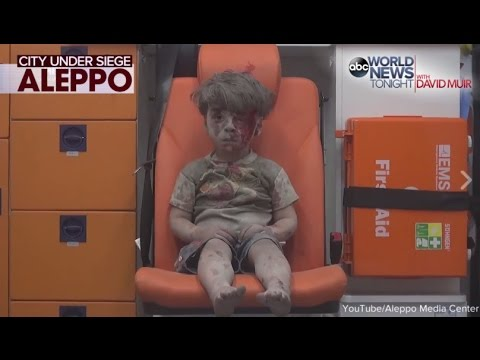 Video Syrian President Says Boy in Ambulence Photo 'Forged' download in MP3, 3GP, MP4, WEBM, AVI, FLV January 2017
