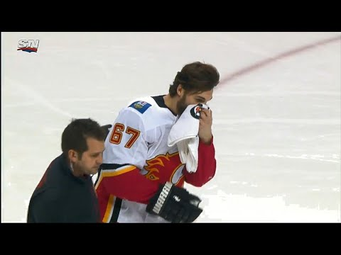 Video: Flames' Frolik takes a puck to the face, leaves game