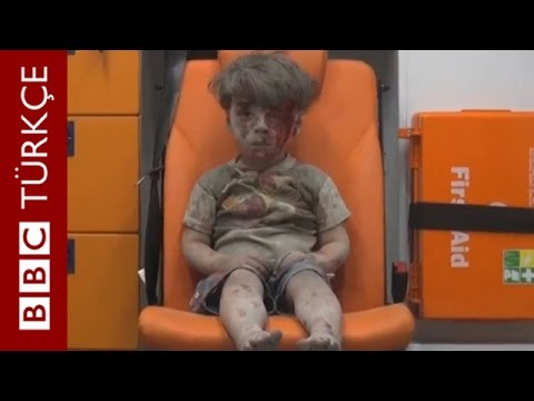 İnsanlığı utandıran Halepli çocuk