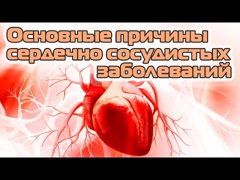«Причины сердечно-сосудистых заболеваний или Как избежать инсульта»