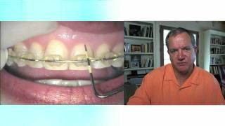 Recession and Restorative Dentistry