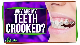 Why Do We Have Such Crooked Teeth?