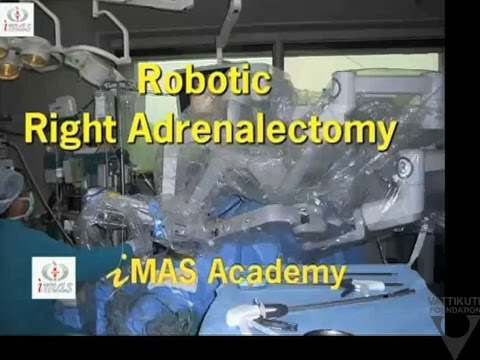Robotic Right Adrenalectomy