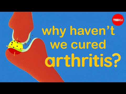 The Science of Arthritis and Why We Still Have No Cure