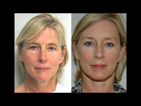 The Best Anti Aging Cream | This Is A Result Of A Research