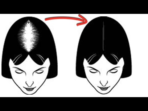 Caboki For Women With Hair Loss