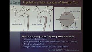 Video Which Acute Type B Dissection Patients Should Undergo TEVAR MP3, 3GP, MP4, WEBM, AVI, FLV Juli 2018
