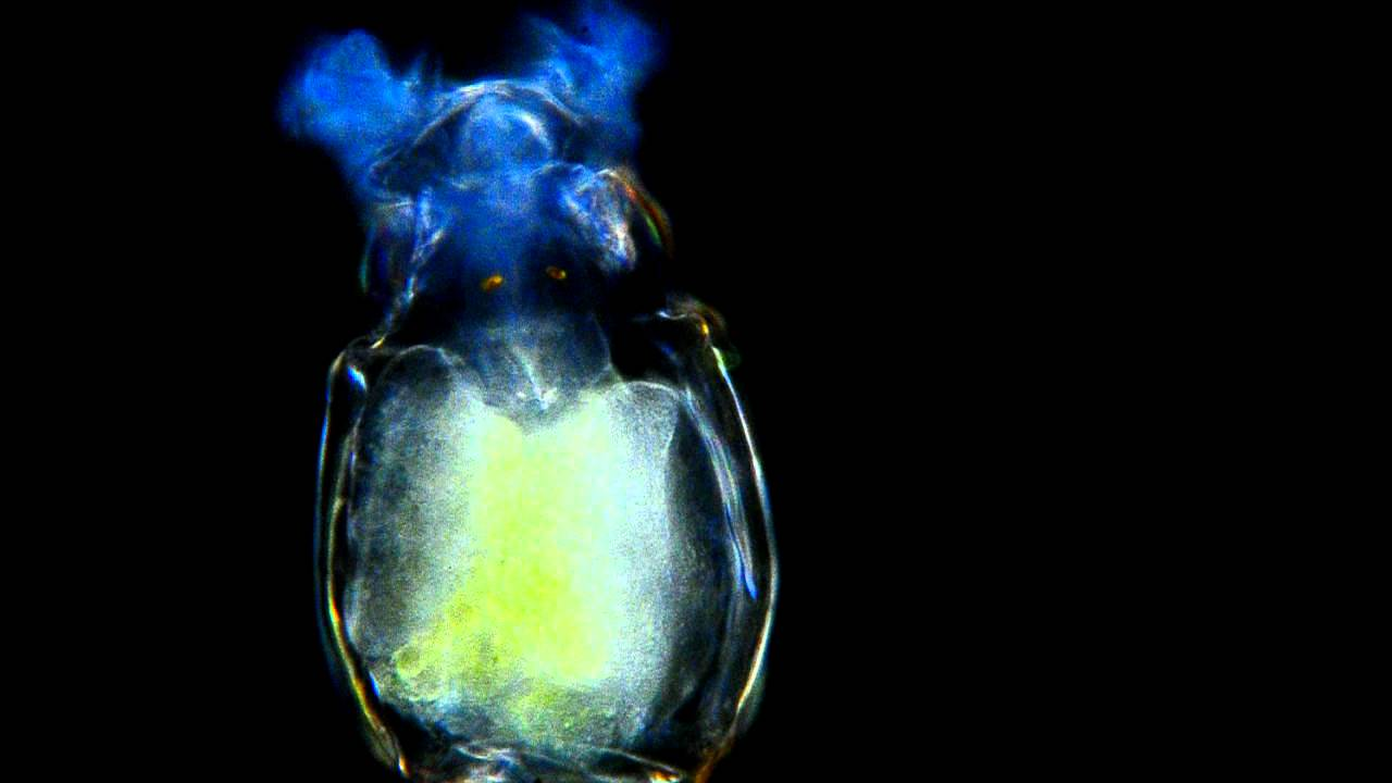 Amazing Microscopic Video! Rotifer with nice corona 400x