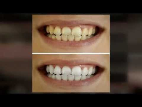 Teeth Whitening – How to whiten teeth naturally and safely