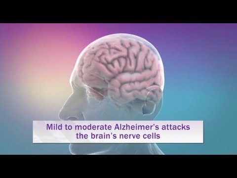 Alzheimer's Disease Explained in 6 minutes with Animation