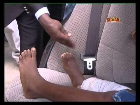 TB Joshua en español - Milagro de curación de la fractura en las piernas