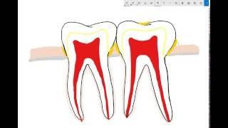 Gum disease explained