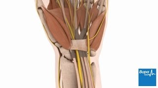 How open carpal tunnel surgery is carried out
