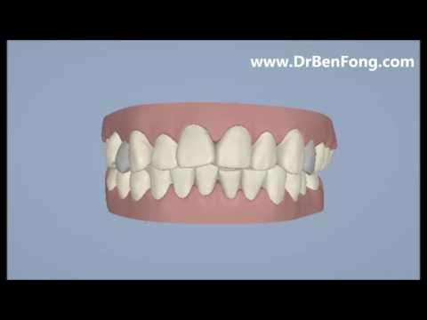 Invisalign Results for Sherri W.| Before & After | www.invisalignresults.ca