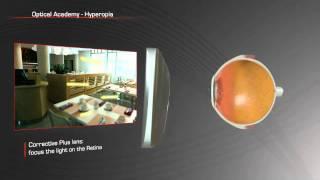 Vision 101: Hyperopia