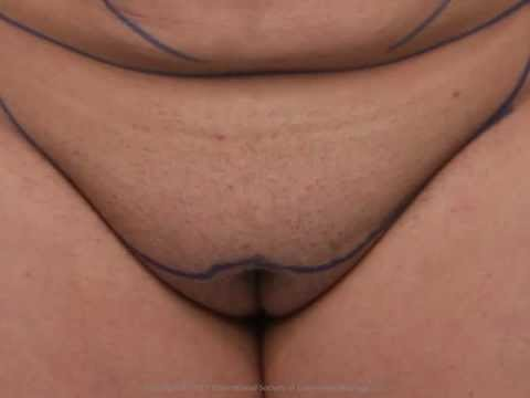 labia - Also view this video at: https://vimeo.com/57377634 Presented at the American Academy of Cosmetic Surgery 29th Annual Scientific Meeting at Caesar's Palace R...