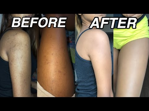 How To Get Rid Of Dark Spots On Your Body || Natural Remedies