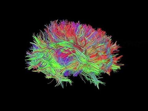 Νέο 3D ολόγραμμα επιτρέπει στους γιατρούς να δουν μέσα στον εγκέφαλό μας – science