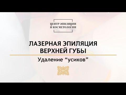 Лазерная эпиляция верхней губы в Центре эпиляции и косметологии г. Казань