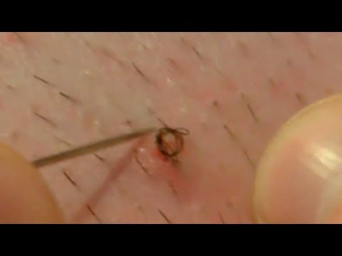 how to tell a pimple from an ingrown hair