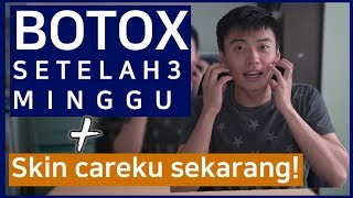 Video Review Botox dan COSRX Produk rekomendasi dari Sunny Nuna! MP3, 3GP, MP4, WEBM, AVI, FLV Juni 2019