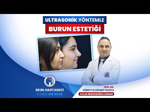 Ultrasonik Yöntemle Burun Estetiği - Opr. Dr. Süreyya Hikmet Kozcu - İzmir Ekol Hastanesi