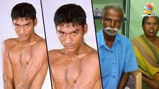 Video Birthmarks removed from Dhanush's body, suggest medical reports | Paternity Case MP3, 3GP, MP4, WEBM, AVI, FLV April 2018
