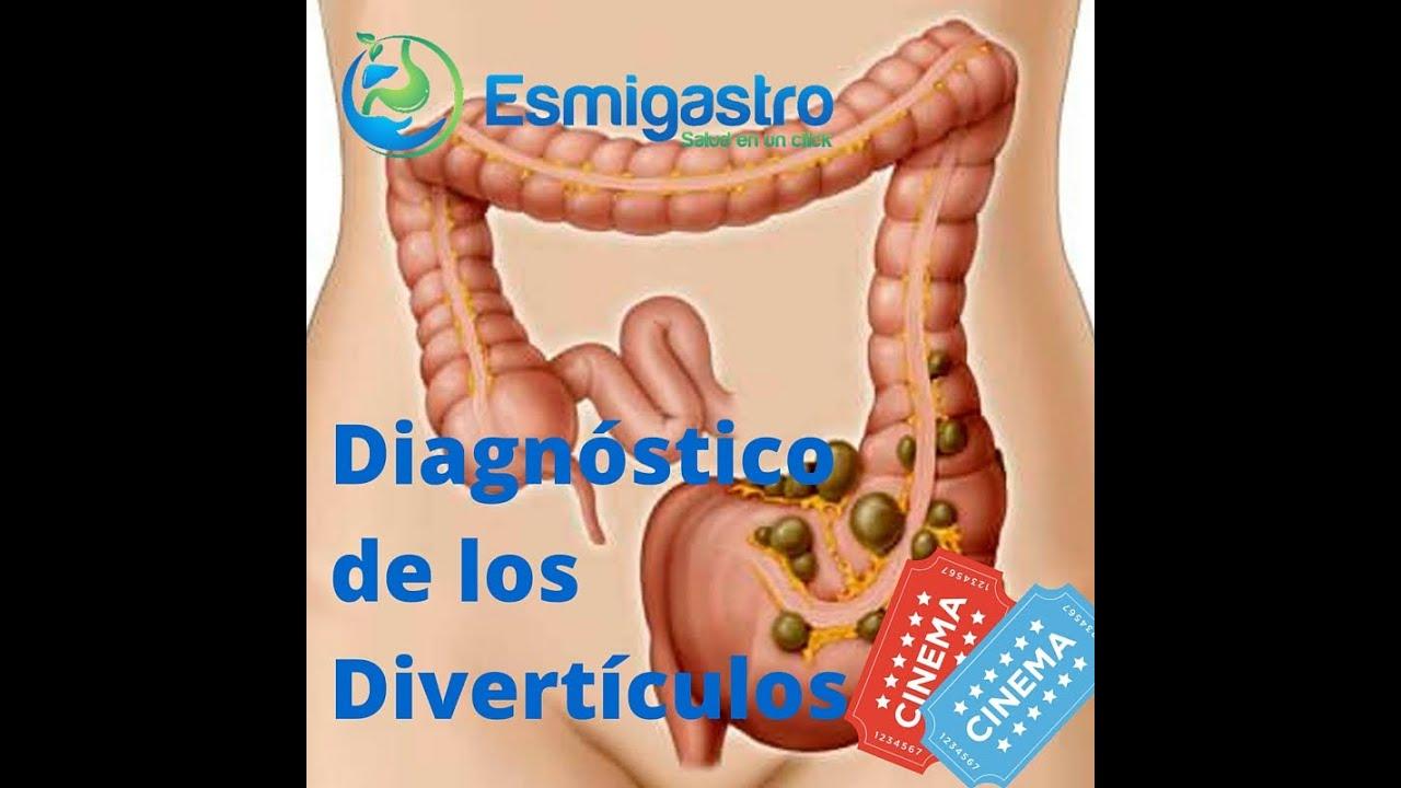 Diagnóstico de los divertículos