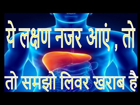 ये लक्षण नजर आएं , तो समझो लिवर खराब है    is a fatty liver painful    liver detox     liver health