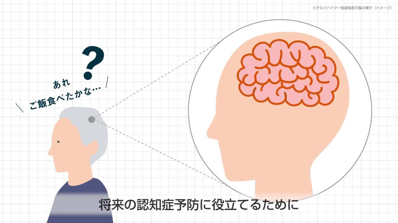 3分でわかる「脳活性度定期検査」