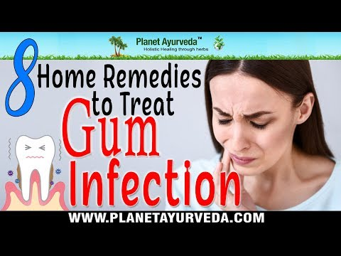 8 Home Remedies to Treat Gum Infection Naturally