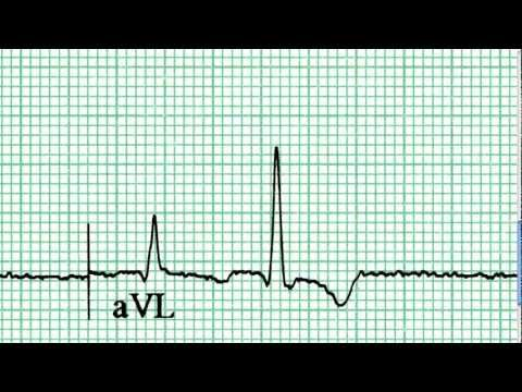 ECG Interpretation, First Impressions, Part 6-1