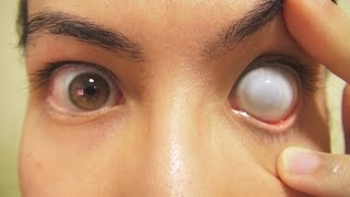 Video How to: Insert And Remove Cataract Sclera Contact Lens (Fxeyes) MP3, 3GP, MP4, WEBM, AVI, FLV Juni 2018