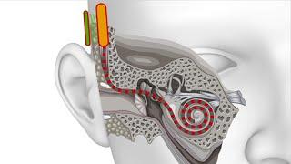 Optogenetische Verfahren: Wieder h�ren k�nnen dank Mikromedizin