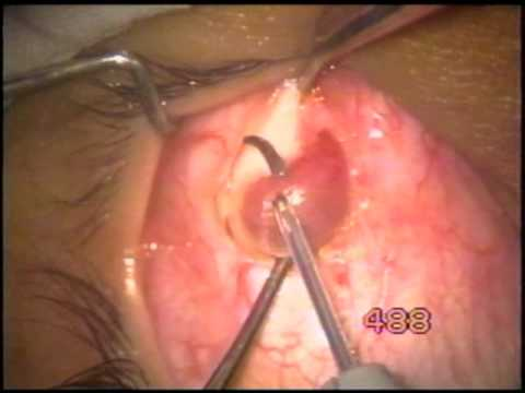 Inferior oblique myomectomy