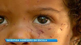 Polícia Civil investiga agressão a criança em creche de Marília