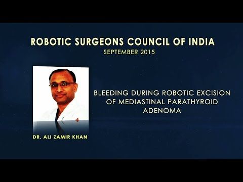 Bleeding During Robotic Excision of Mediastinal Parathyroid Adenoma