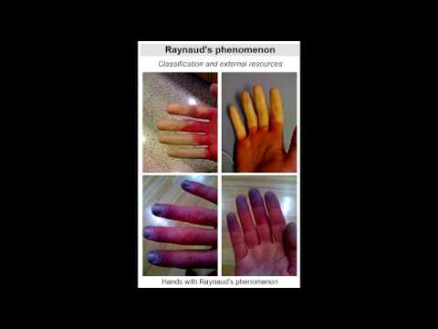 Raynaud's Phenomenon (vasospasm in extremities)