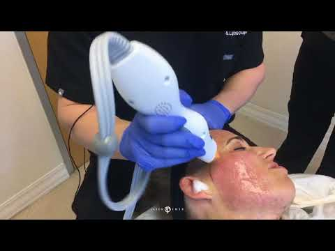 THERMAGE | SKIN TIGHTENING | NON-INVASIVE | DR. JASON EMER MD | LIVE