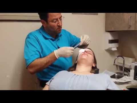 Chalazion Removal with Cauterizing the Eyelid!